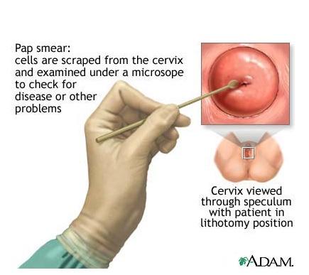 pap smear test